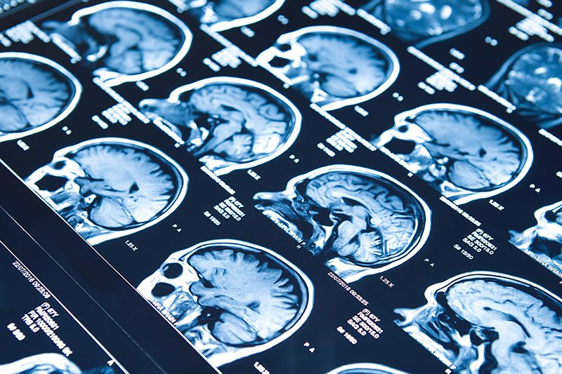 Neuroradiology Brain Injury And Concussion Lawyers Denver Colorado.